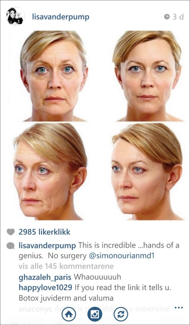 Botox og Juvederm